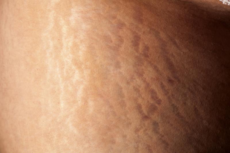 Nguyên nhân và cách chữa rạn da ở tuổi dậy thì