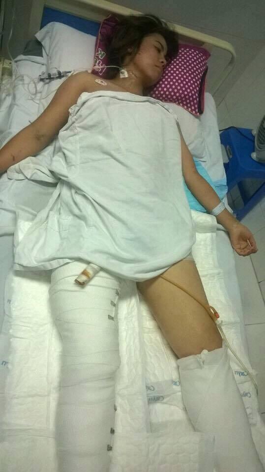 Cô gái gặp nạn trong vụ sập nhà ở Cửa Bắc có nguy cơ bị cắt chân - ảnh 2