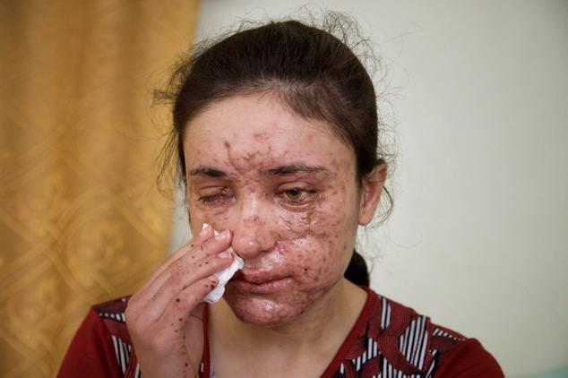 Gương mặt chằng chịt sẹo của cô gái sau 5 lần trốn chạy khỏi những tay buôn bán nô lệ tình dục IS - Ảnh 2.