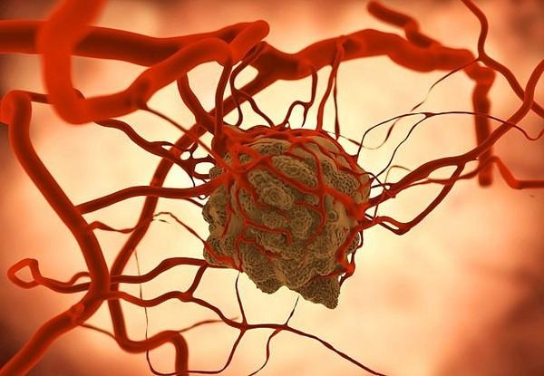 Cuối cùng, chúng ta đã tìm ra cách ngăn tế bào ung thư di căn - Ảnh 2.