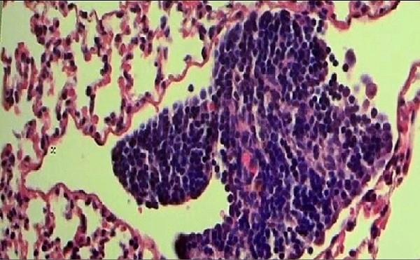 Cuối cùng, chúng ta đã tìm ra cách ngăn tế bào ung thư di căn - Ảnh 1.