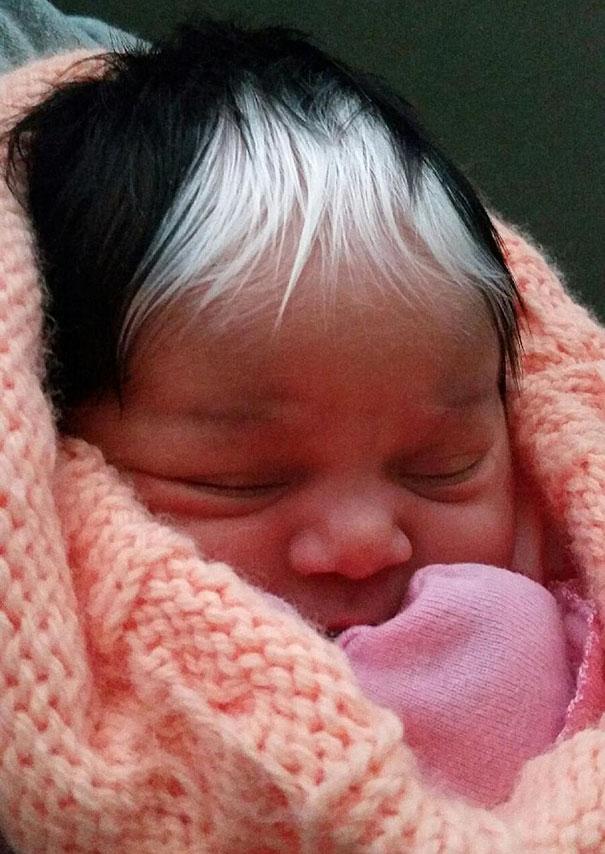 Bé gái chào đời với chỏm tóc bạc giống công chúa Anna trong Frozen - Ảnh 2.
