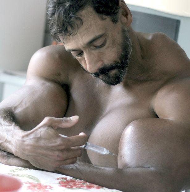 Cơ bắp cuồn cuộn như người khổng lồ nhờ chăm chỉ tiêm dầu vào tay mỗi ngày - Ảnh 1.