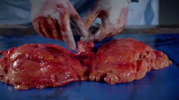 Nội tạng của thi thể hơn 100kg sẽ như thế nào khi được giải phẫu? - Ảnh 5.