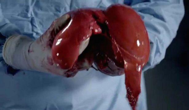 Nội tạng của thi thể hơn 100kg sẽ như thế nào khi được giải phẫu? - Ảnh 6.