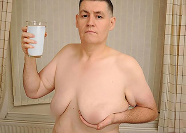 Người đàn ông mọc ti do uống quá nhiều sữa đậu nành - Ảnh 1.