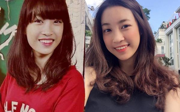 Xuất hiện nghi vấn Hoa hậu Việt Nam 2016 Đỗ Mỹ Linh từng sửa răng - Ảnh 2.