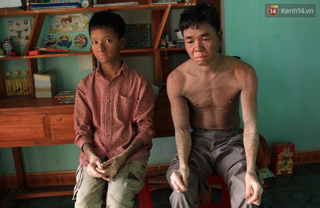 Cậu bé người rắn ở Quảng Nam: Hồi trước các bạn bỏ chạy vì sợ, nhưng giờ nhiều bạn thân với con lắm - Ảnh 1.