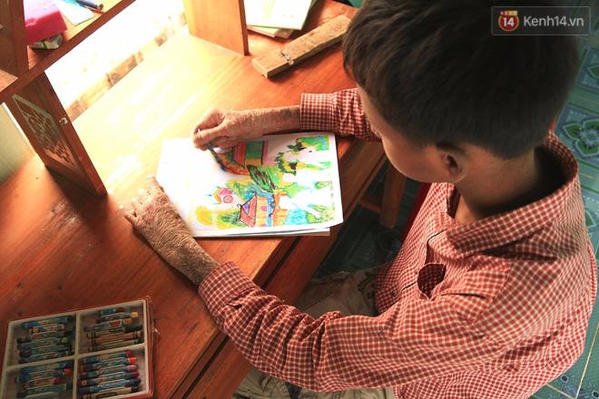Cậu bé người rắn ở Quảng Nam: Hồi trước các bạn bỏ chạy vì sợ, nhưng giờ nhiều bạn thân với con lắm - Ảnh 9.