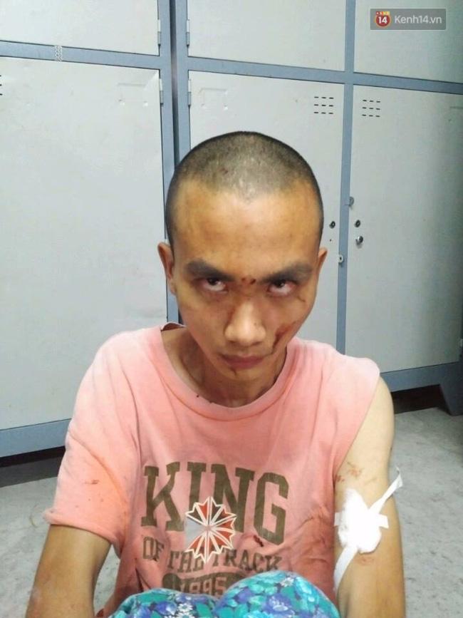 Nghi vấn nhà sư truy sát nhiều người trong chùa Bửu Quang có sử dụng chất kích thích - Ảnh 1.