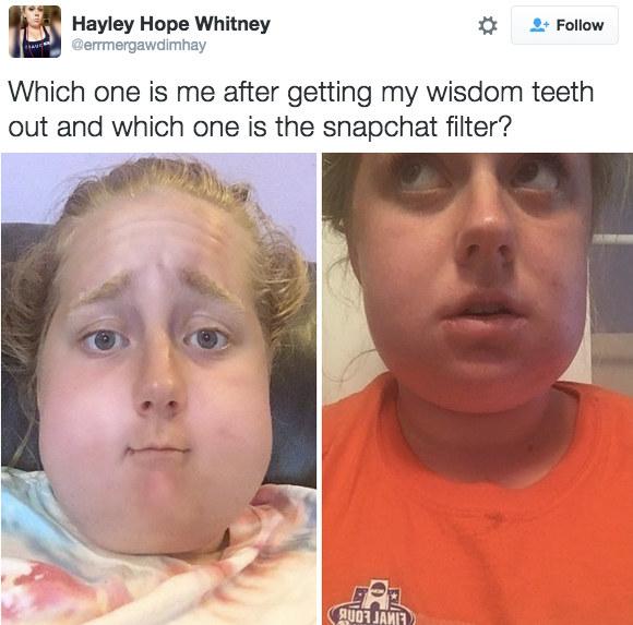 Nở rộ trào lưu khoe ảnh nhổ răng khôn chẳng cần tới hiệu ứng như Snapchat - Ảnh 3.