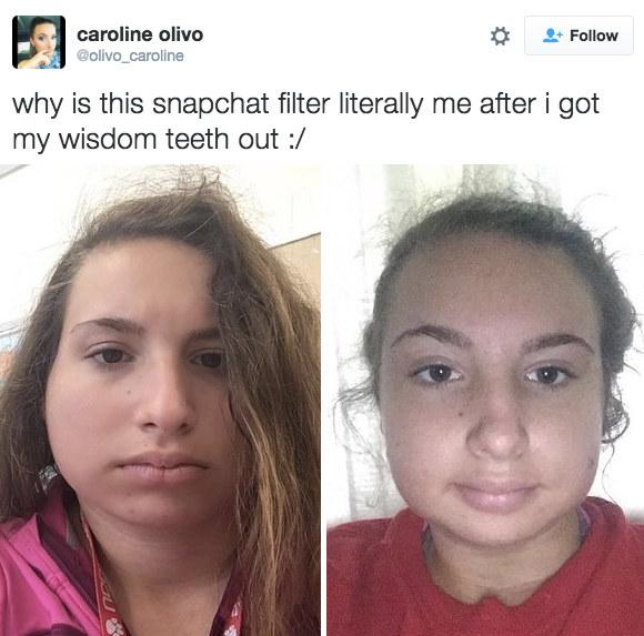Nở rộ trào lưu khoe ảnh nhổ răng khôn chẳng cần tới hiệu ứng như Snapchat - Ảnh 9.