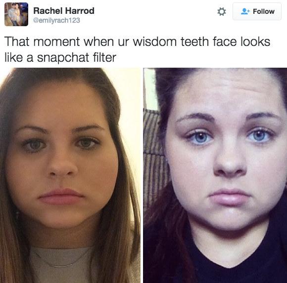 Nở rộ trào lưu khoe ảnh nhổ răng khôn chẳng cần tới hiệu ứng như Snapchat - Ảnh 10.