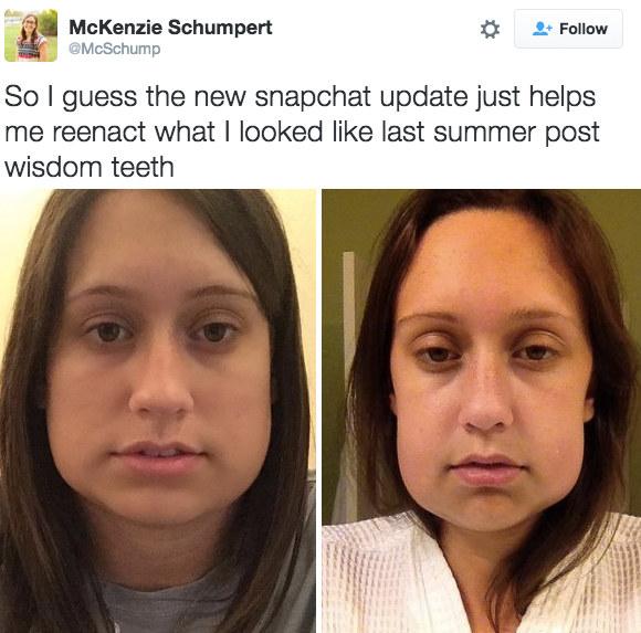 Nở rộ trào lưu khoe ảnh nhổ răng khôn chẳng cần tới hiệu ứng như Snapchat - Ảnh 8.