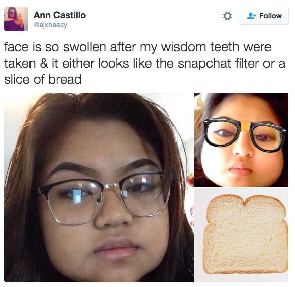 Nở rộ trào lưu khoe ảnh nhổ răng khôn chẳng cần tới hiệu ứng như Snapchat - Ảnh 5.