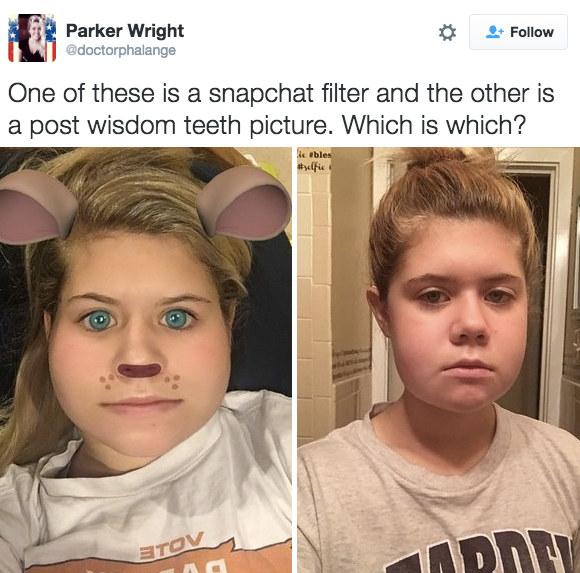 Nở rộ trào lưu khoe ảnh nhổ răng khôn chẳng cần tới hiệu ứng như Snapchat - Ảnh 12.