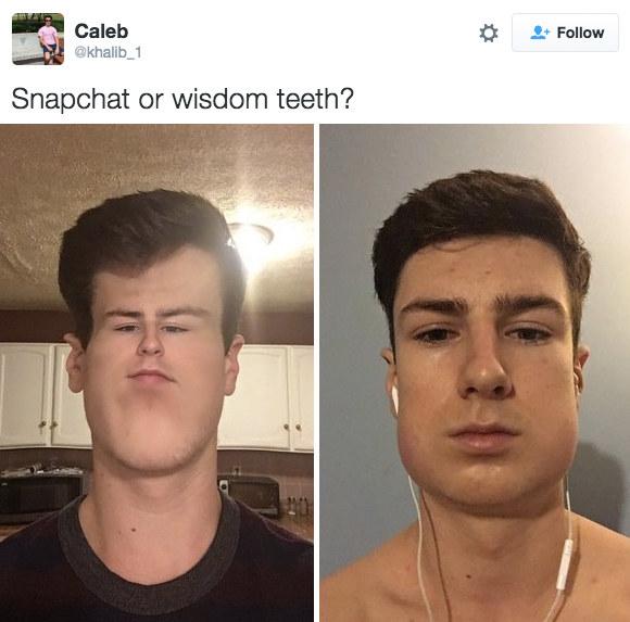 Nở rộ trào lưu khoe ảnh nhổ răng khôn chẳng cần tới hiệu ứng như Snapchat - Ảnh 6.