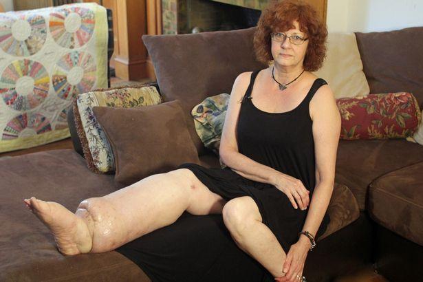 Cái kết có hậu cho người phụ nữ suốt 20 năm sống với mặc cảm chân to, chân bé - Ảnh 1.