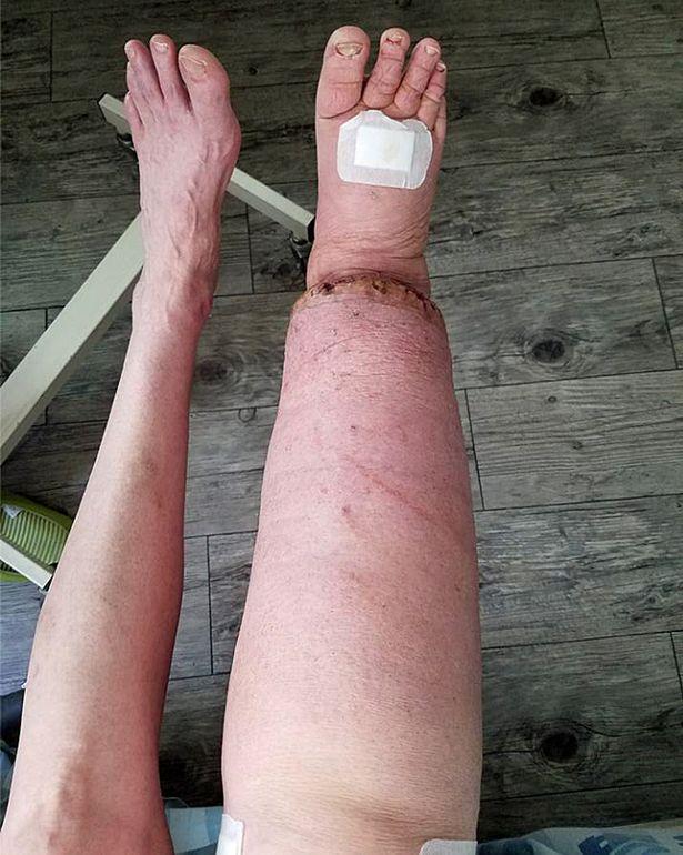 Cái kết có hậu cho người phụ nữ suốt 20 năm sống với mặc cảm chân to, chân bé - Ảnh 2.