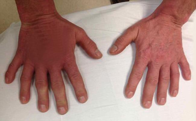 Người đàn ông có đôi bàn tay kỳ lạ nhưng nhiều người vẫn không biết lạ ở chỗ nào - Ảnh 1.