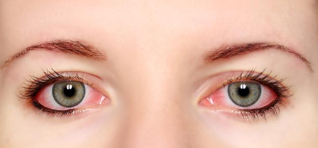 Đừng để những thói quen không tốt là tác nhân gây bệnh đau mắt đỏ trong hè này - ảnh 1