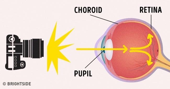 Ai cũng từng thắc mắc chụp ảnh ban đêm hay bị mắt đỏ, đây là lí do tại sao - Ảnh 2.