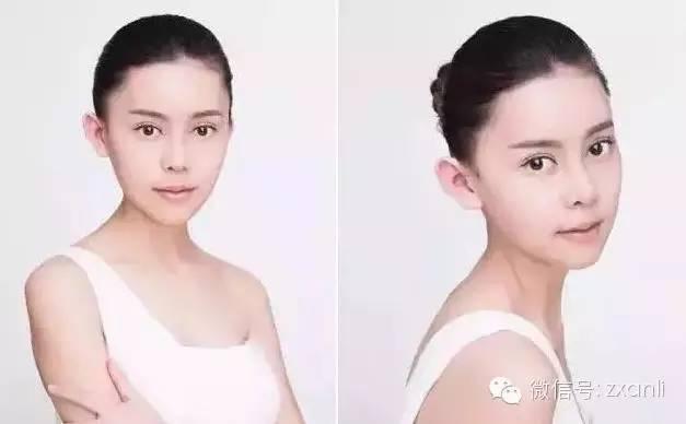 Cô gái trẻ chi hơn 3,2 tỷ đồng để phẫu thuật giống Angela Baby