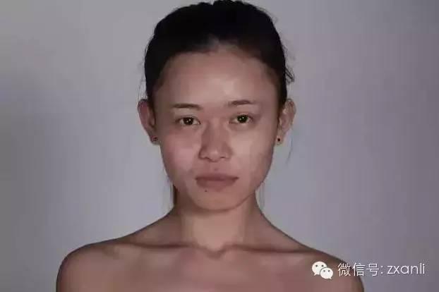 Cô gái trẻ chi hơn 3,2 tỷ đồng để phẫu thuật giống Angela Baby - ảnh 3