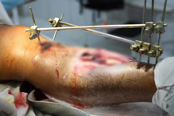 Lý do bạn cần cân nhắc thật kỹ trước khi quyết định thực hiện phẫu thuật kéo dài chân - ảnh 4
