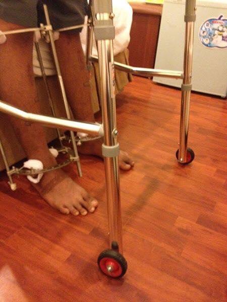 Chàng trai phẫu thuật kéo chân từ 1m67 lên 1m76: Vẫn cõng được người yêu như thường! - ảnh 7