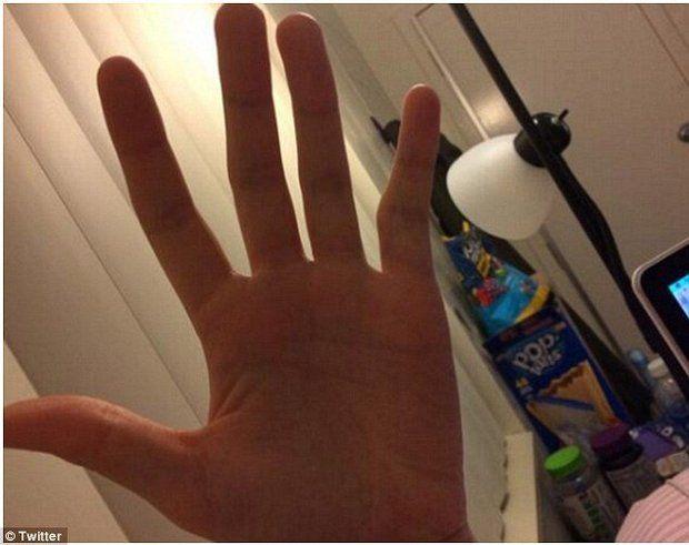 Nếu ngón tay út bị cong thế này, bạn phải sửa cách cầm điện thoại ngay và luôn - Ảnh 5.