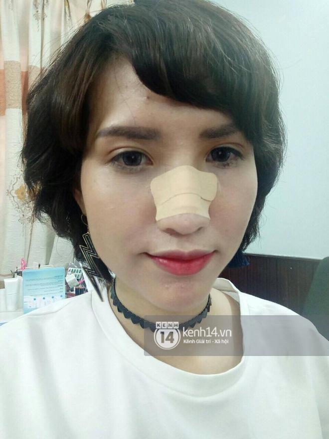 Hồng Xuân bức xúc lên tiếng: Không đánh Nguyễn Hợp nhưng bị chấn thương ở mũi! - Ảnh 2.