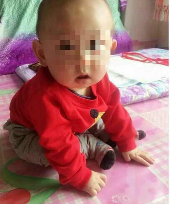 Mẹ cạo đầu, lột da để cứu con trai 2 tuổi bị bỏng nặng vì ngã vào nồi nước sôi - Ảnh 5.