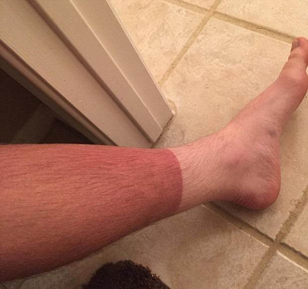 14 tai nạn cháy nắng khiến làn da trông như thịt nướng - Ảnh 1.