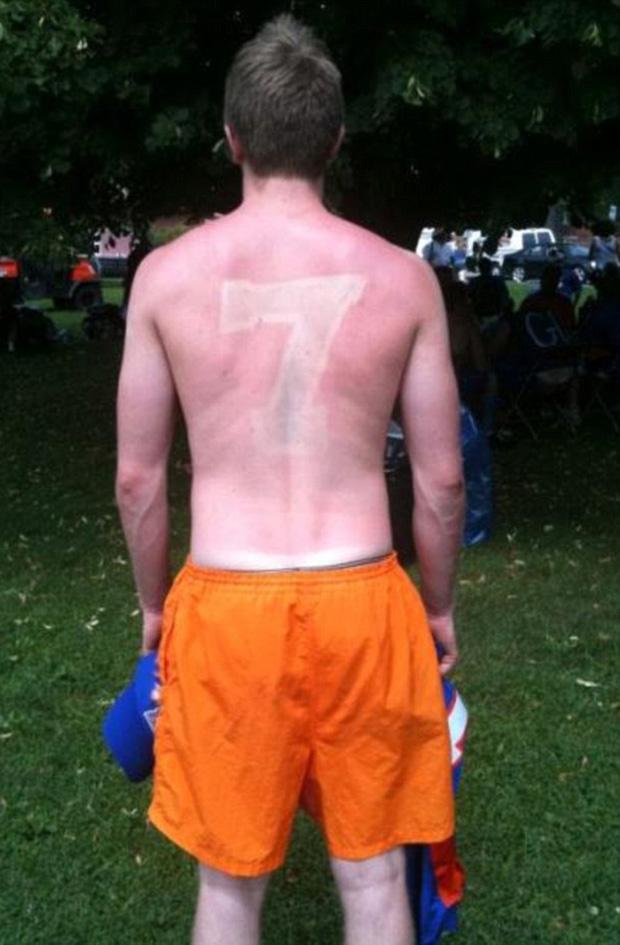 14 tai nạn cháy nắng khiến làn da trông như thịt nướng - Ảnh 3.