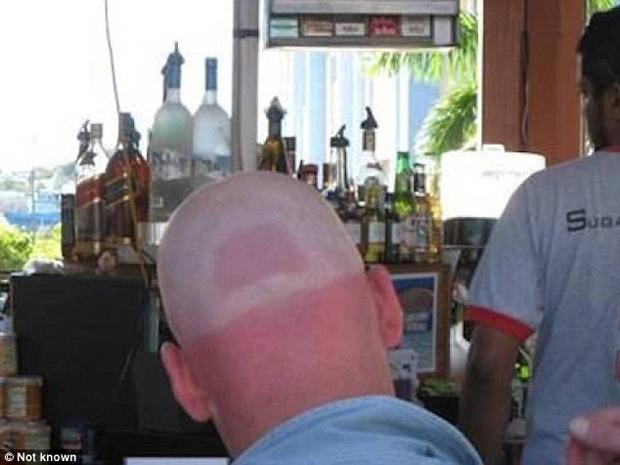 14 tai nạn cháy nắng khiến làn da trông như thịt nướng - Ảnh 5.