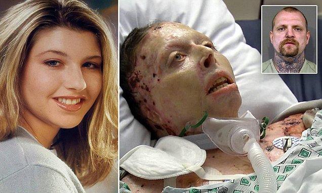 2 năm sau khi bị bạn trai tẩm xăng thiêu sống, người phụ nữ xinh đẹp đã qua đời 1