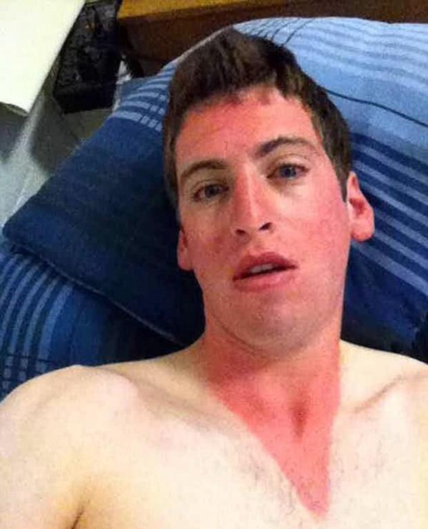 14 tai nạn cháy nắng khiến làn da trông như thịt nướng - Ảnh 9.