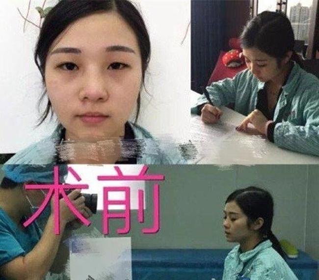 Cô gái mất 8 năm phẫu thuật giống Phạm Băng Băng rồi cưới luôn bác sĩ thẩm mỹ cho mình - Ảnh 10.