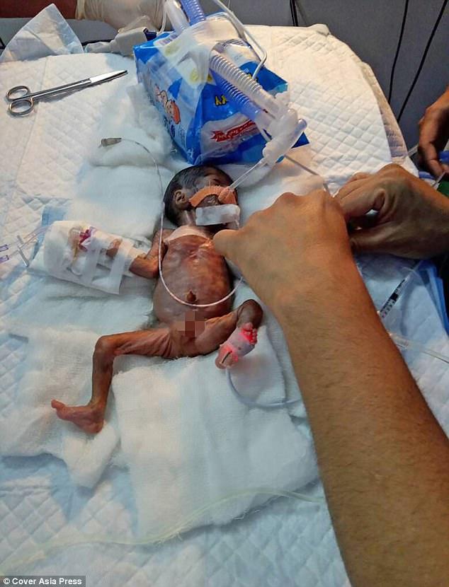 Em bé hạt tiêu chỉ nhỏ bằng bàn tay nặng chưa tới 0,5kg - Ảnh 3.