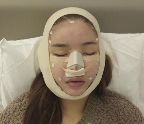 Những sao Việt phẫu thuật thẩm mỹ trong năm 2016: Người thành công - Kẻ thành thảm họa - Ảnh 6.