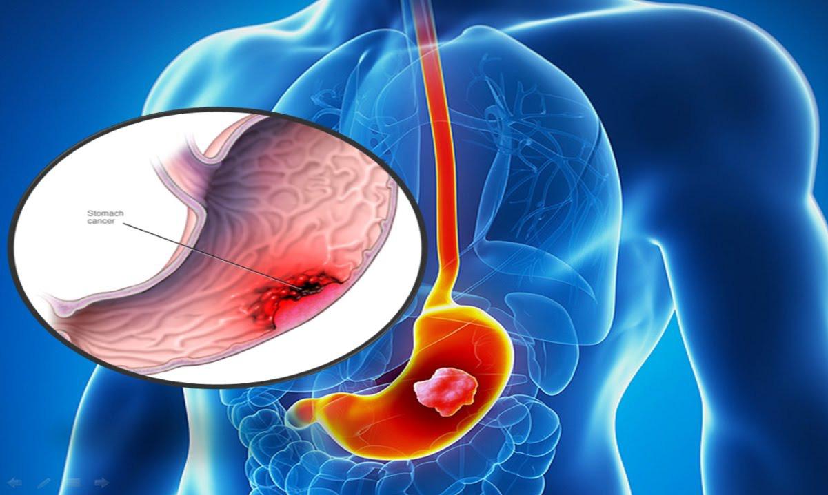 Kết quả hình ảnh cho ung thư dạ dày