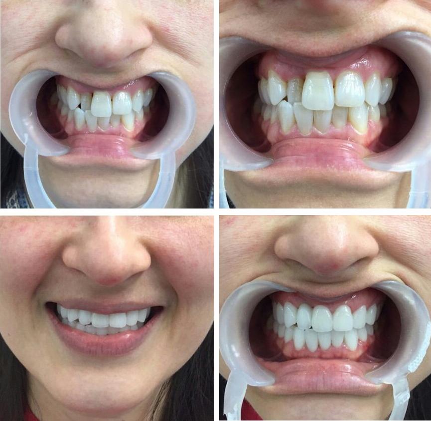 Kết quả hình ảnh cho bọc răng sứ