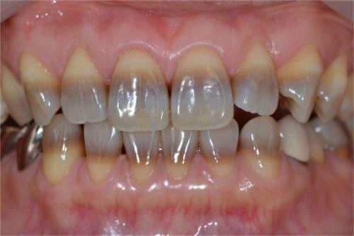 Kết quả hình ảnh cho xử lý răng nhiễm tetracycline