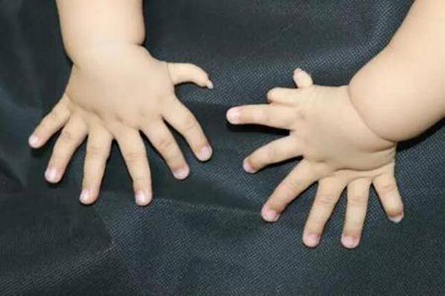 Người đàn ông có đôi bàn tay kỳ lạ nhưng nhiều người vẫn không biết lạ ở chỗ nào - Ảnh 3.