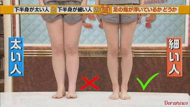Đài TBS Nhật Bản chỉ ra nguyên nhân ai cũng mắc khiến chân to như... cột đình - Ảnh 2.