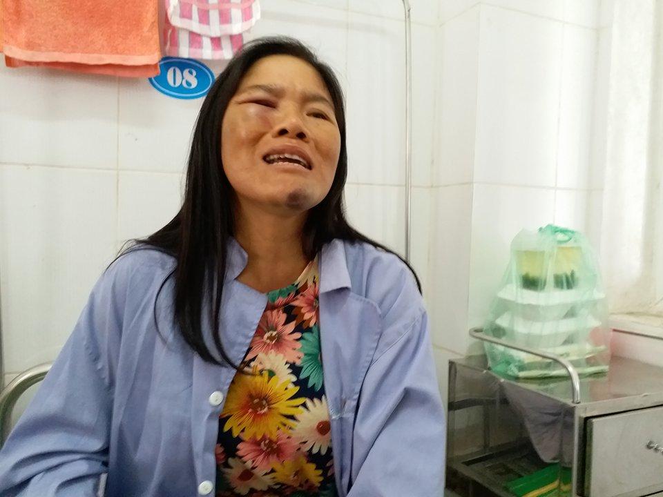 Đời sống: Gia cảnh kiệt quệ của người phụ nữ bán tăm bị đánh oan đến nhập viện vì nghi bắt cóc