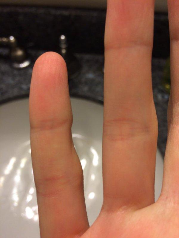 Nếu ngón tay út bị cong thế này, bạn phải sửa cách cầm điện thoại ngay và luôn - Ảnh 3.