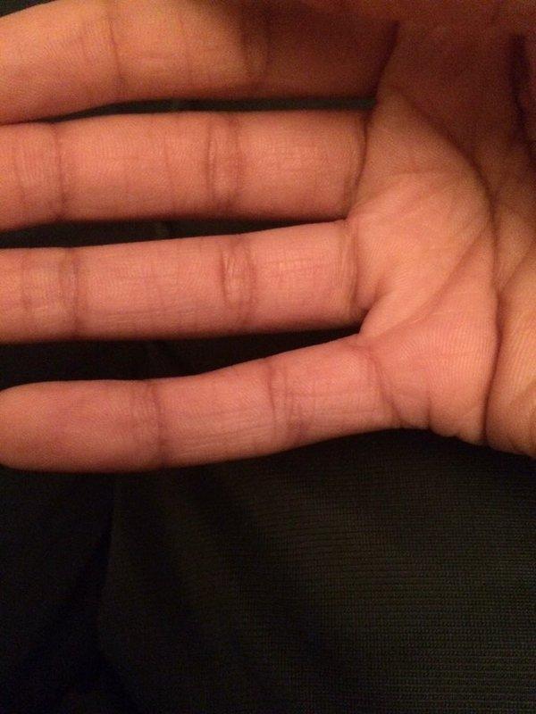 Nếu ngón tay út bị cong thế này, bạn phải sửa cách cầm điện thoại ngay và luôn - Ảnh 2.