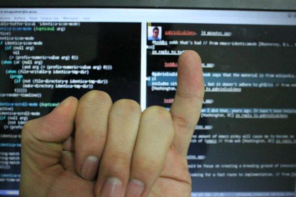 Nếu ngón tay út bị cong thế này, bạn phải sửa cách cầm điện thoại ngay và luôn - Ảnh 1.